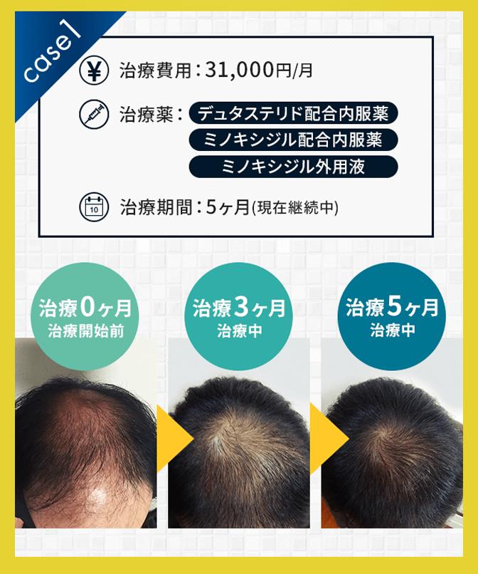 AGAヘアクリニックの薄毛治療の症例写真