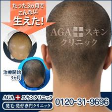 男性専門の発毛・育毛治療医院「AGA navi」